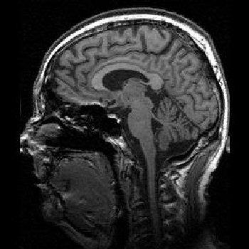 brain_mri_sagittal_t1_001.jpg